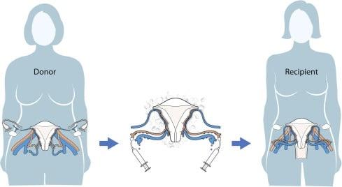 Трансплантиране на матка